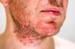 Bệnh nấm da ở vùng râu gây khó chịu và mất thẩm mĩ