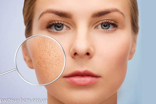 Biểu hiện dị ứng da mặt