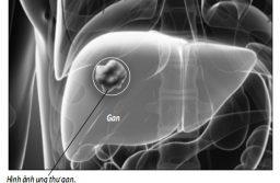 Chế độ ăn phòng ngừa ung thư gan