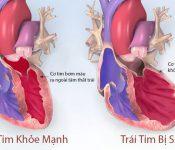 Dược thiện hỗ trợ điều trị suy tim mạn tính hiệu quả